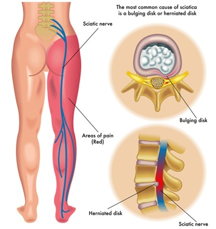 sciatica herniated disc
