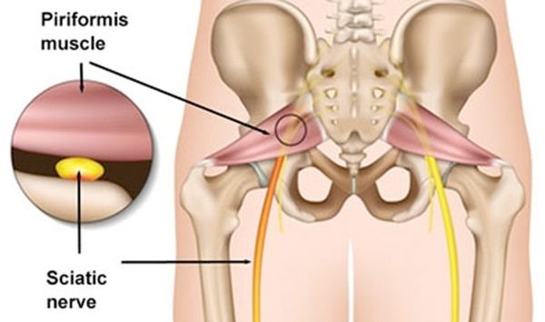 sciatica piriformis